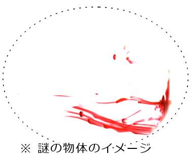 飛蚊症の見え方 症状のイラスト図1